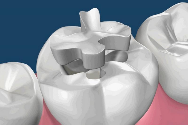 Resultado de imagen para Odontología Conservadora